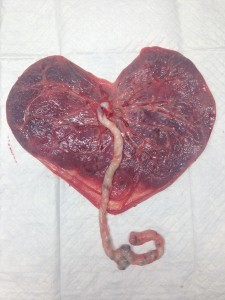 Be still my heart shaped placenta!
